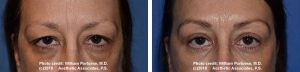 blepharoplasty in portland oregon